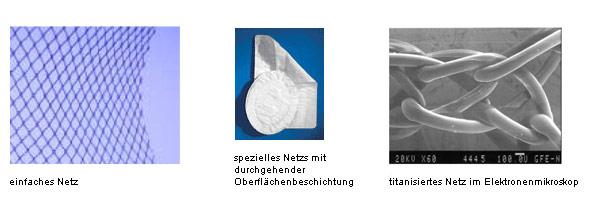 Chirurgie-Online: Narbenbrüche Therapie